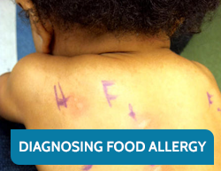 Diagnosing a Food Allergy