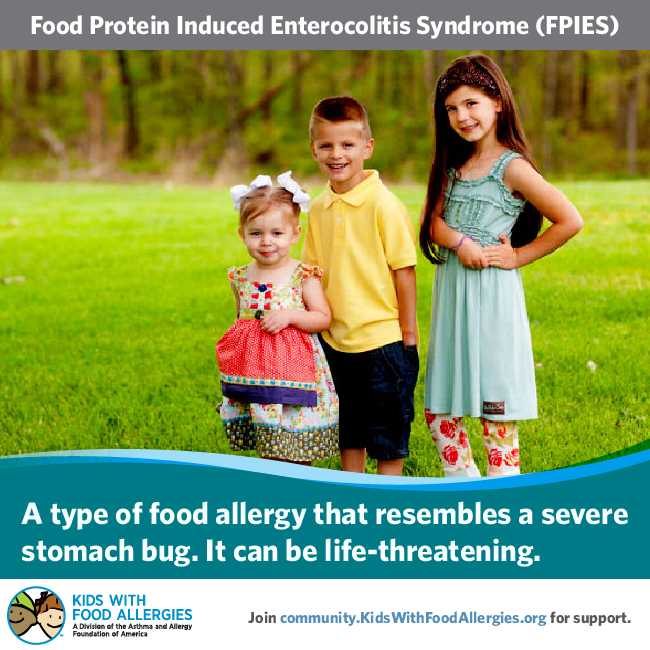 Food Protein Induced Enterocolitis Syndrome FPIES - a type of food allergy that resembles severe stomach bug. It can be life-threatening. Join KFA's community for support.